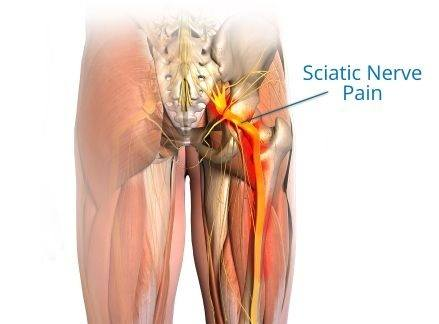 sciatica pain In the nerves
